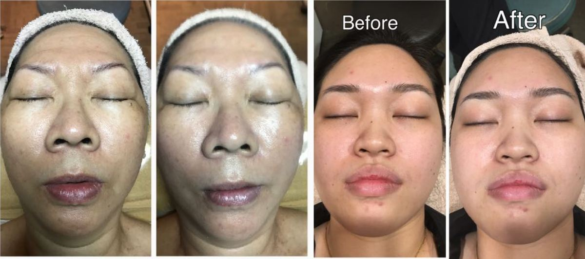 BB Glow Korean Glass Skin Treatment 2