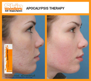 phytopeeling-hulk-acne-therapy
