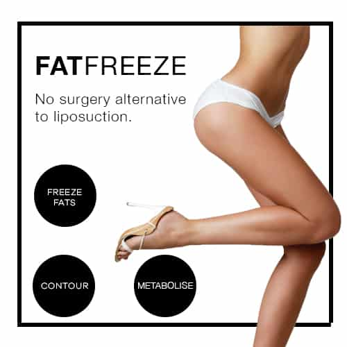 Fat freeze
