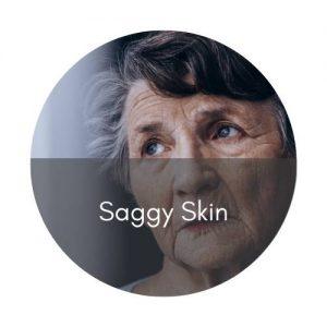 skinbooster saggy skin