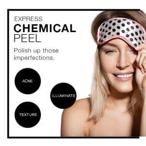 chemical peel acne