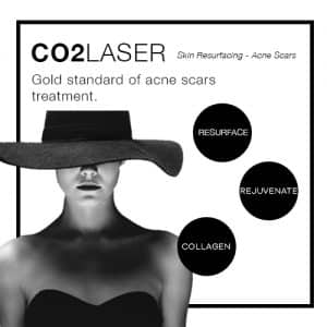 fractional co2 laser acne